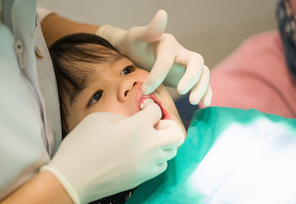 Why Would Fluoride Treatments Be Needed